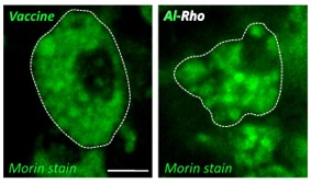 Morin-Stains-Showing-Al-Rho-Particles